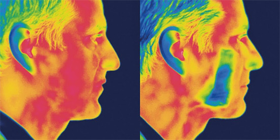 Thermal Imaging Face
